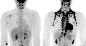 PET-CT scan  mostrando grasa marrón, antes(derecha) y después (izquierda) de la exposición al frío. Original: Wouter van Marken Lichtenbelt